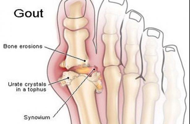 trái nhàu trị bệnh gout (5)